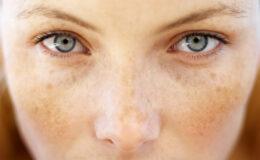 Você cuida da sua pele?