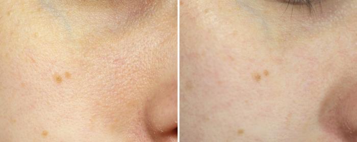 glamglow antes e depois