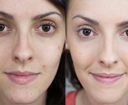 Como esconder/maquiar espinhas e parecer natural?