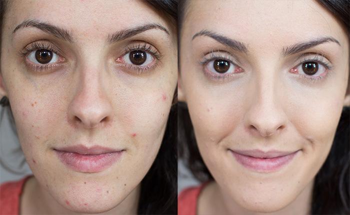 antes e depois espinhas como corrigir