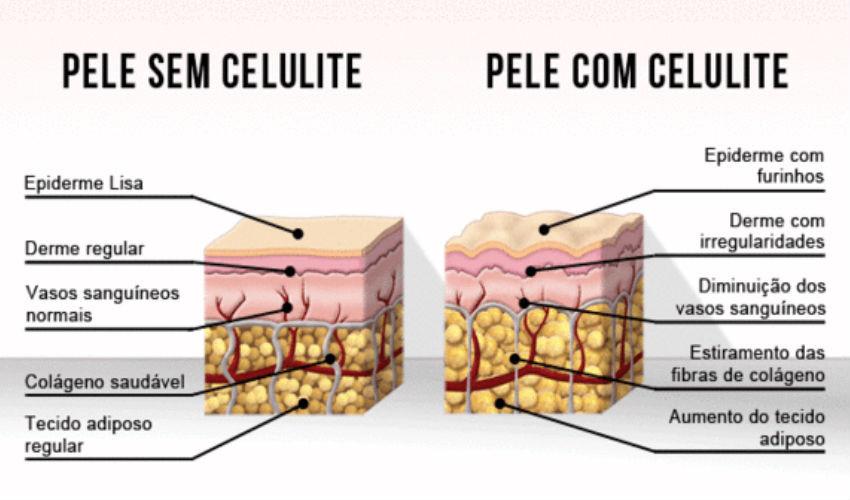 Ilustração mostra como é a pele com celulite